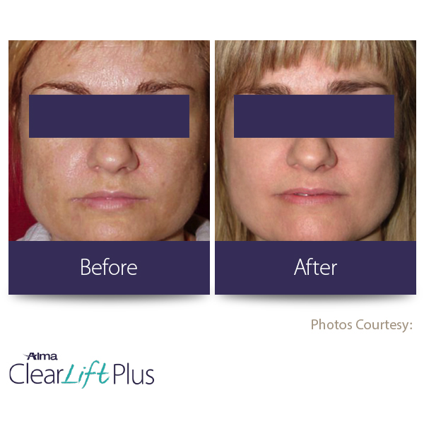 BEFORE-AFTER11 Clear lift plus