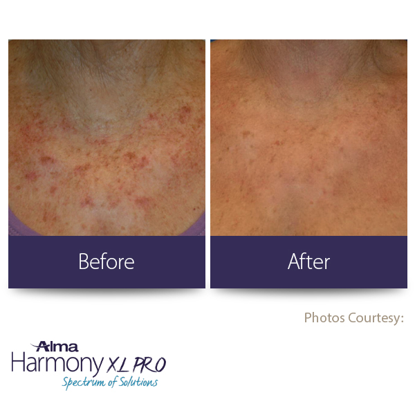 BEFORE-AFTER5 brown spot removal (1)