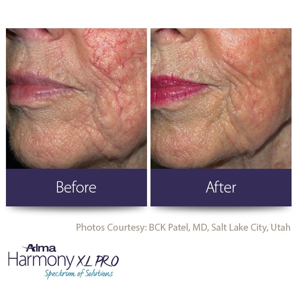 BEFORE-AFTER7 facial veins
