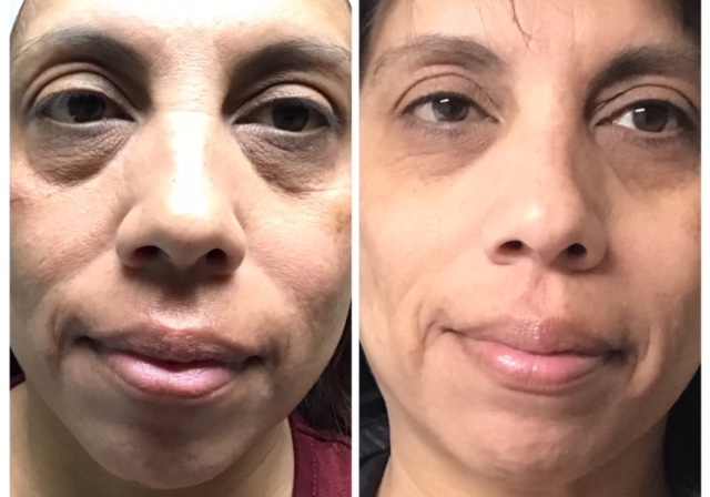 clearlift facial B & A