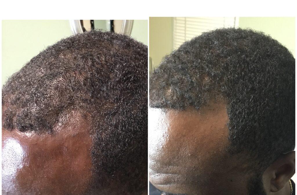 Hair Regeneration B & A (3 months)
