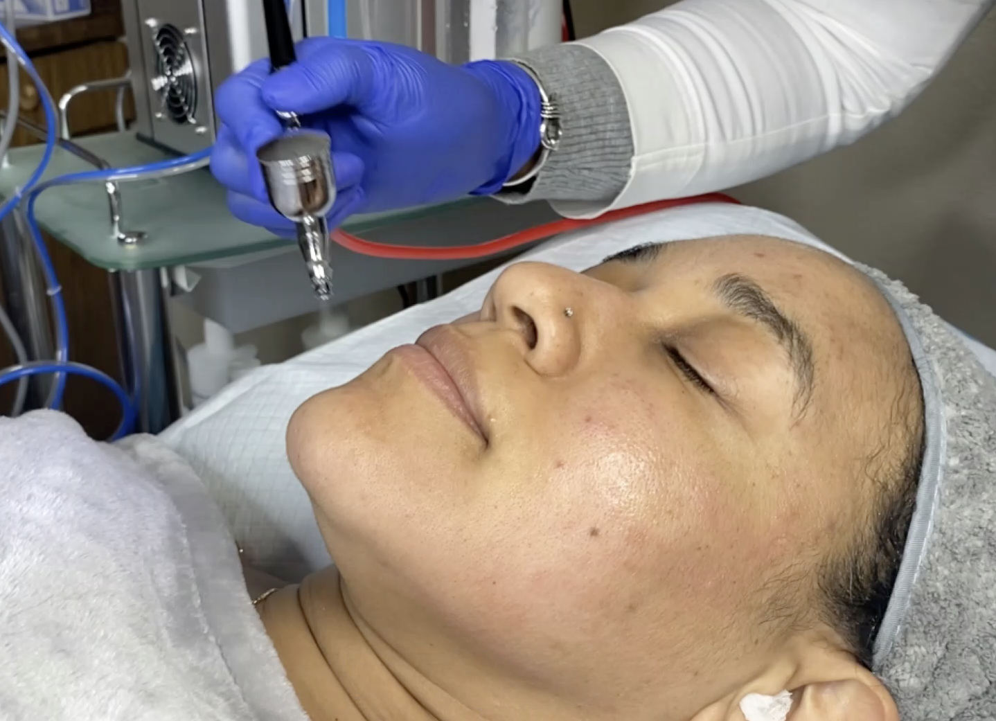 Oxygen therapy Photo